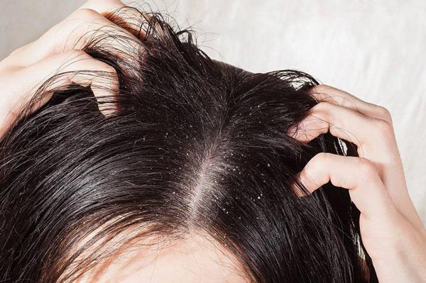 Dandruff leads to scalp inflammation, itching and shedding